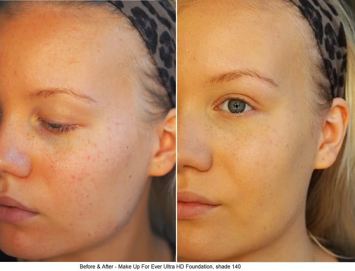 beforeaftermakeupforeverhdfoundation