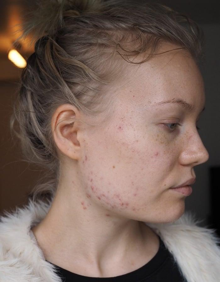 acne blogger