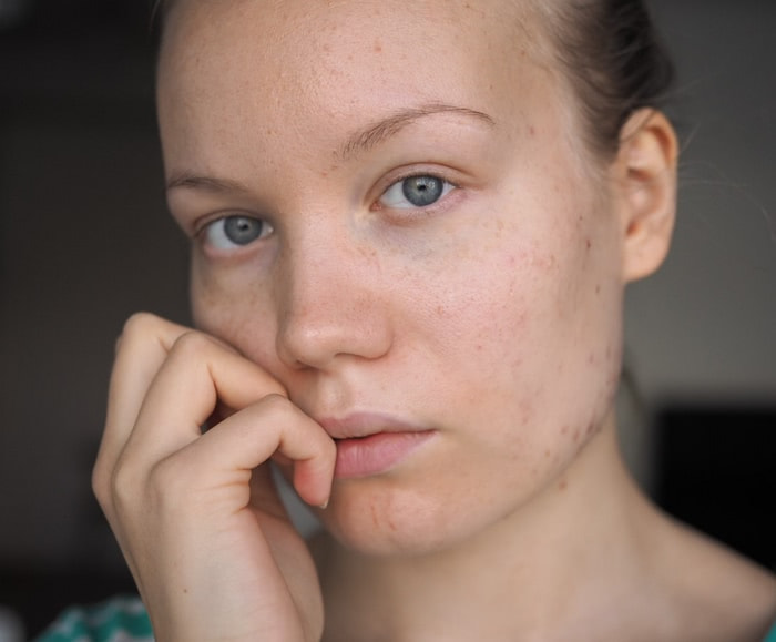 apocyclin acne progress