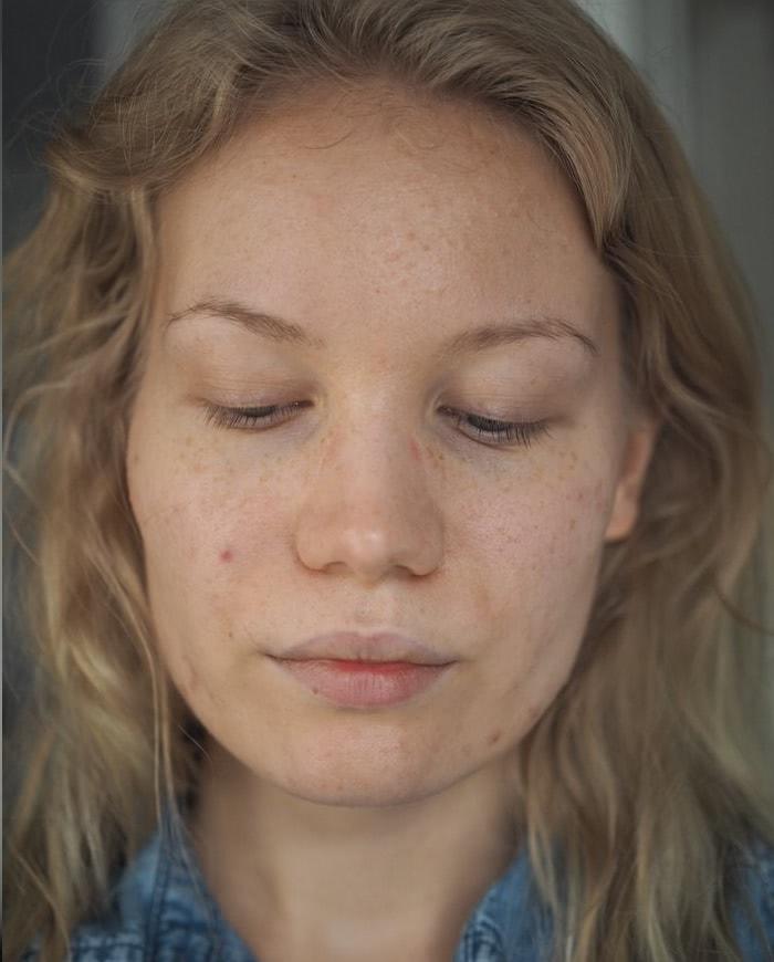 hormonal acne antibiotics