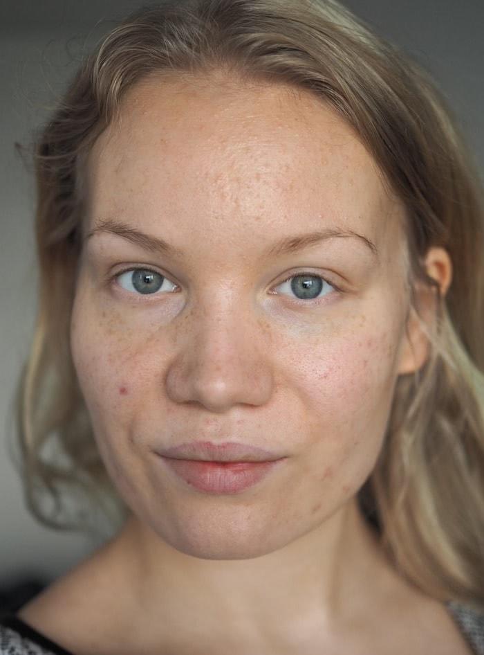 apocyclin acne