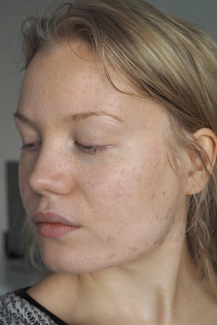 adult acne my progress