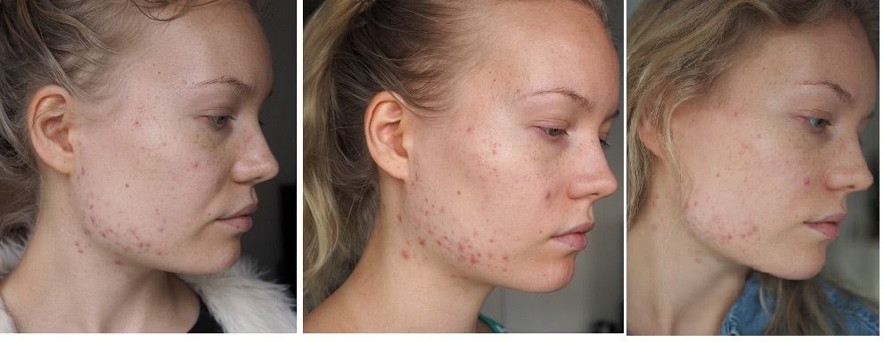 apocyclin adult acne progress