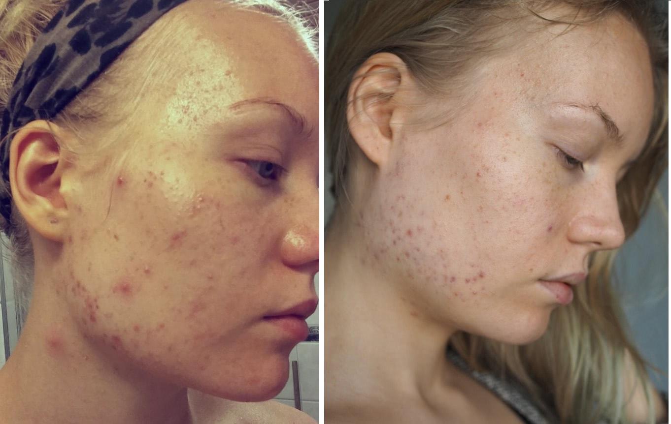 blogger acne progress