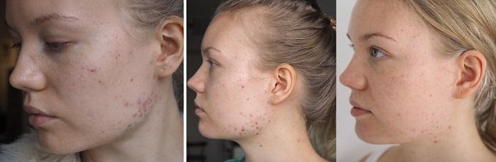 acne progress apocyclin
