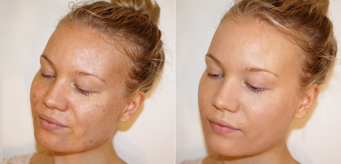 milani conceal perfect foundation before after