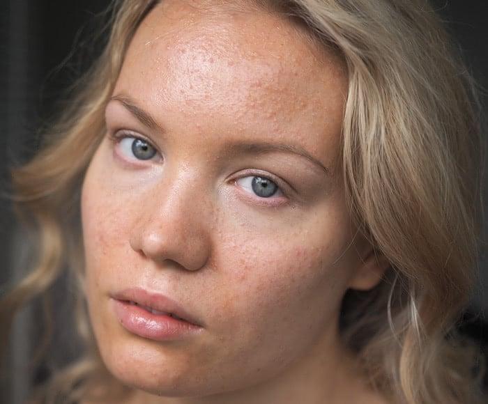 acne skin progress photo