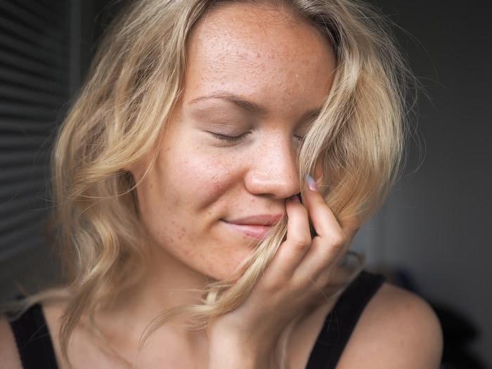 acne antibiotics and diet
