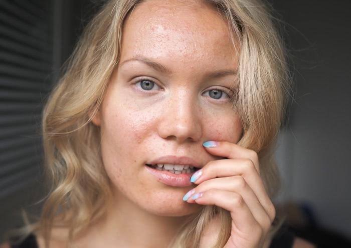 acne apocyclin