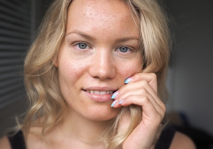 acne antibiotics experience