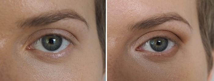 how to balance protruding eyes