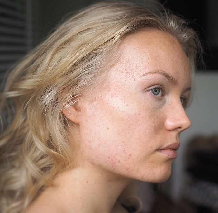 acne how I cured it