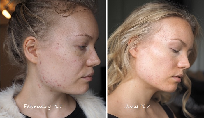 acne progress from february to july antibiotics