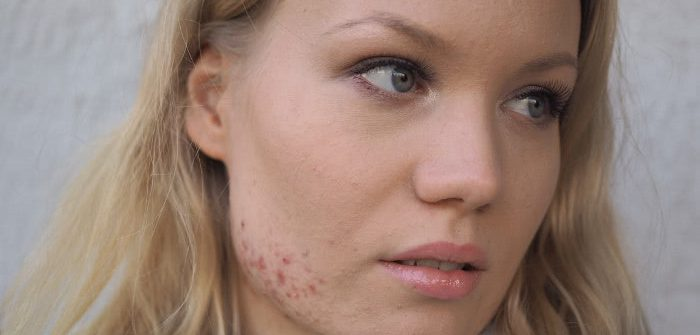 acne anti coverage makeup