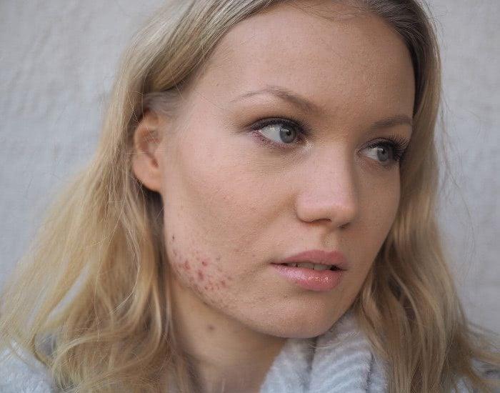 acne anti coverage makeup