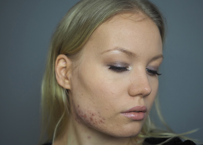 acne confidence makeup