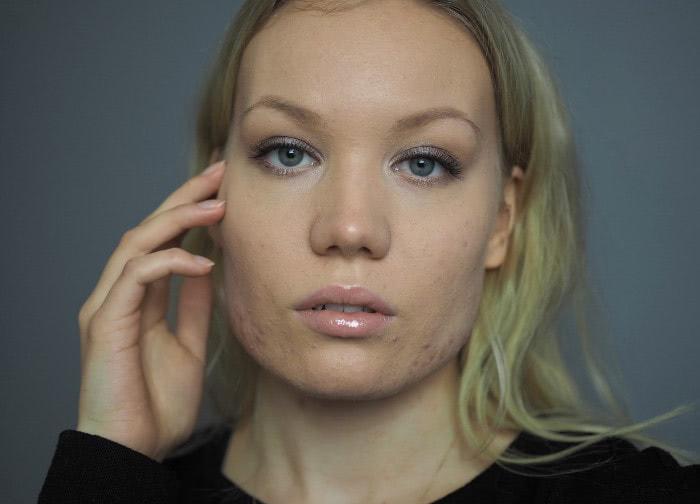 acne makeup confidence blog