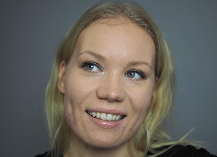 acne makeup blog confidence