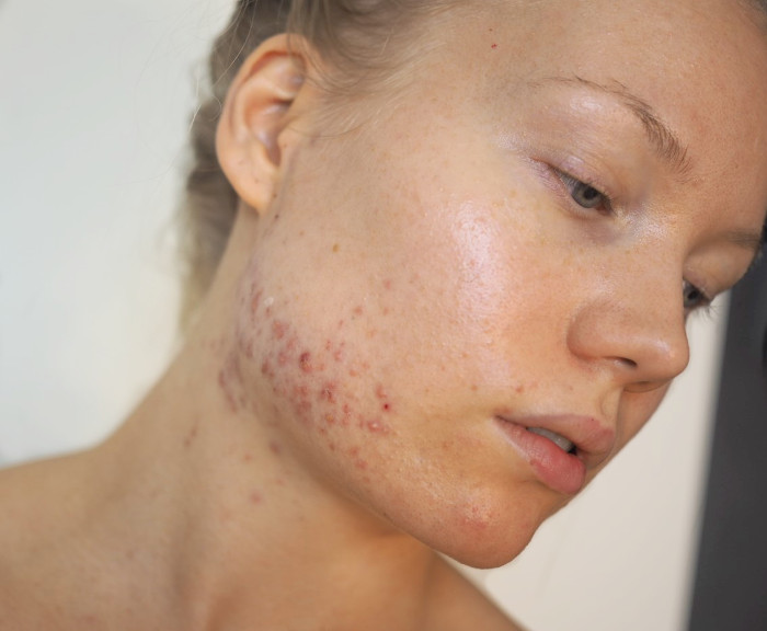 hormonal acne blog