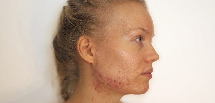 acne hormonal acne my experience