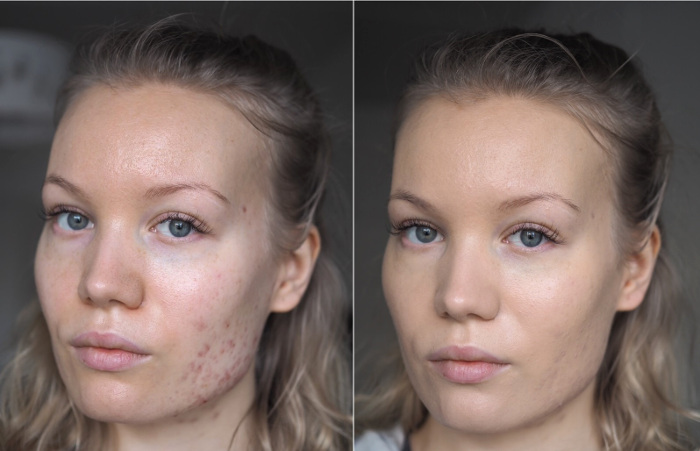 before after clarins everlasting foundation