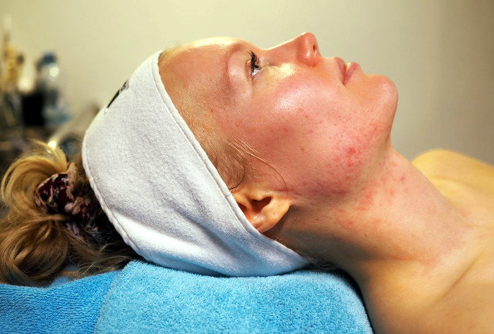dmk kasvohoito kosmetologi anu