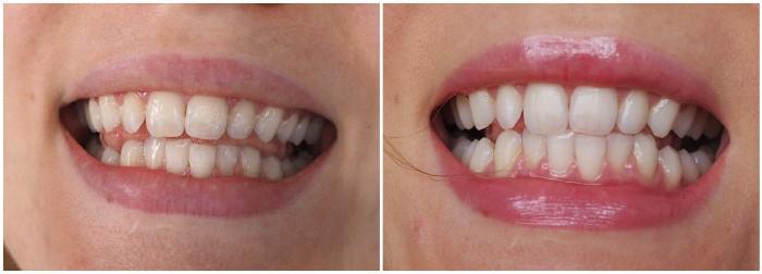 hampaidenvalkaisu helsinki