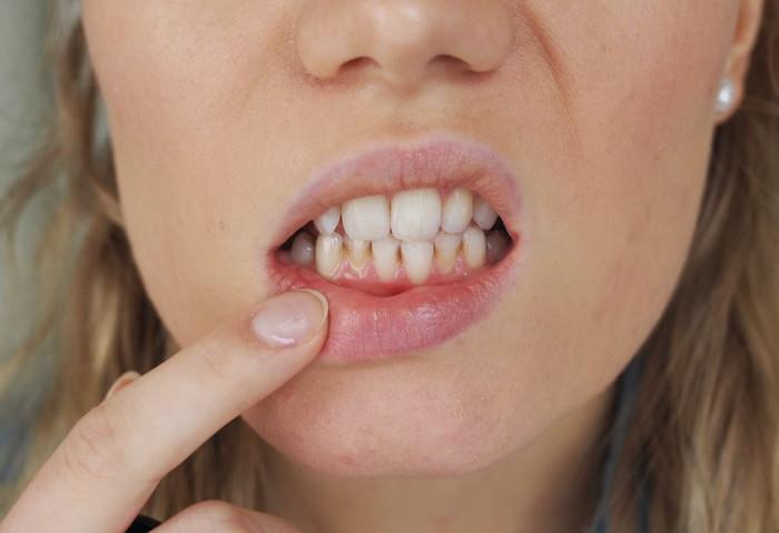 teeth stains värjäytymät hampaissa