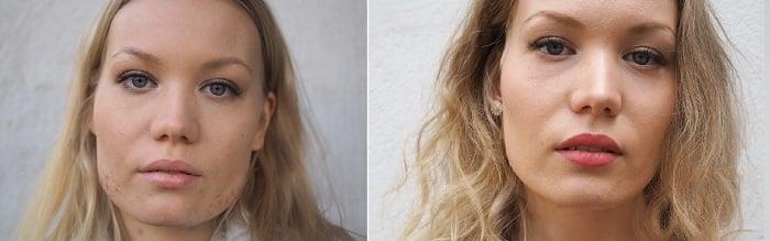 ennen jälkeen botox