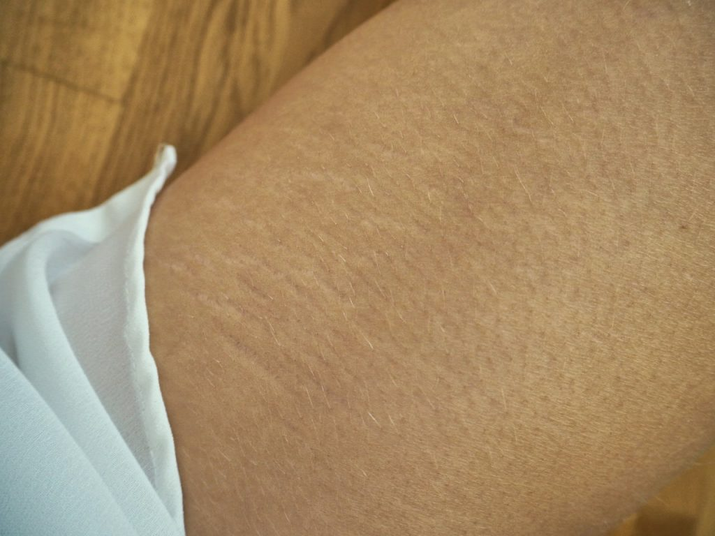 Stretch marks are just skin