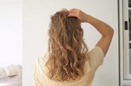 seborrheic dermatitis curly hair
