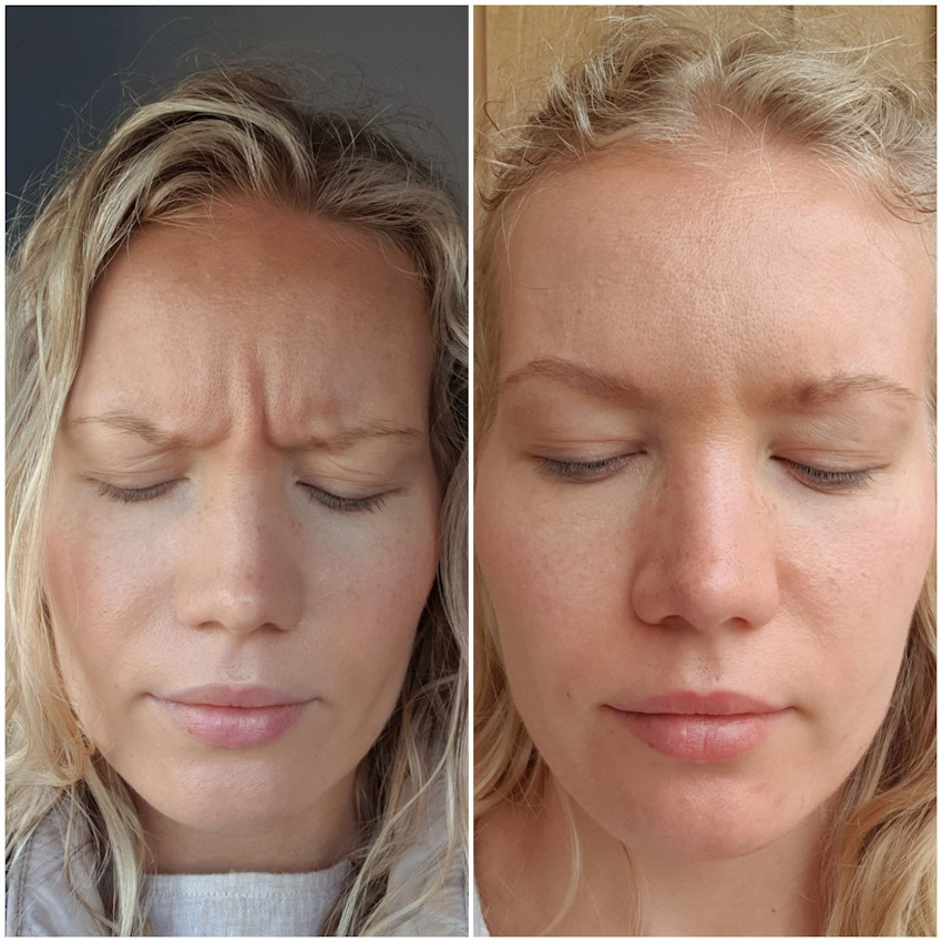 botox for frown lines before and after