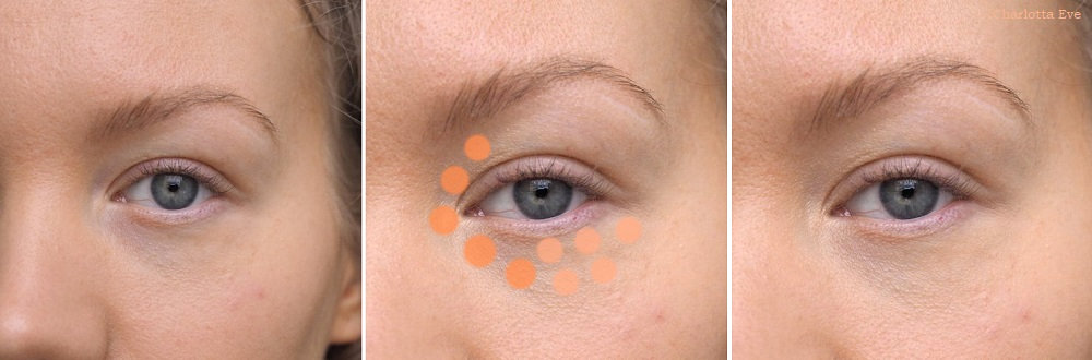 where to apply concealer dark circles